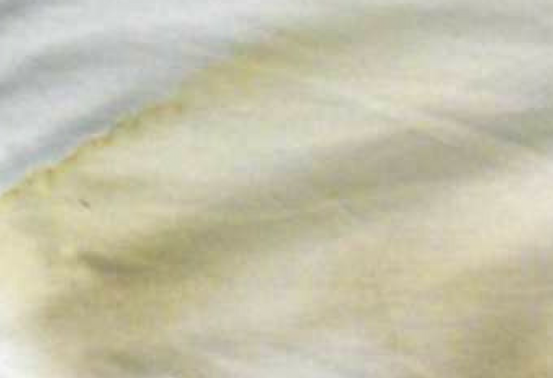 Manchas Amarillentas